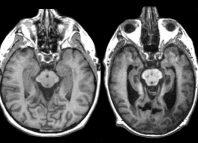 Contaminación aumenta riesgo de padecer Alzheimer